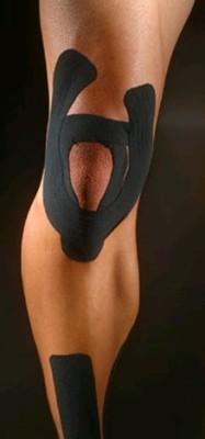 kinesio tape knee